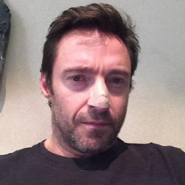 Hugh Jackman behandeld voor huidkanker